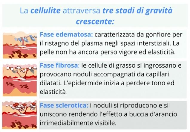 stadi-e-tipi-di-cellulite_640x480